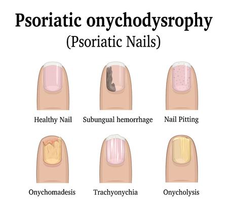 Illustratie van vijf soorten nagelpsoriasis, zoals nagelkrampjes, subungulaire bloeding, onychomadesis, trachyonychia en onycholysis