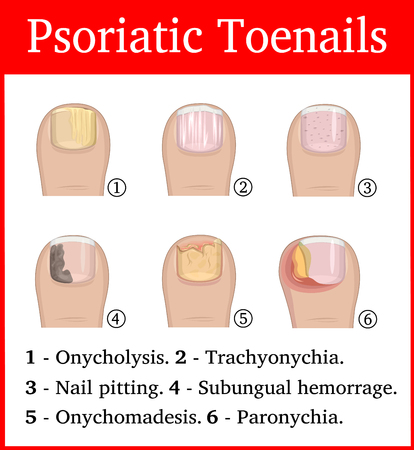 Illustration of six kinds of psoriatic tonails, such as nail pitting, subungual hemorrhage, onychomadesis, trachyonychia, onycholysis and paronychia 向量圖像