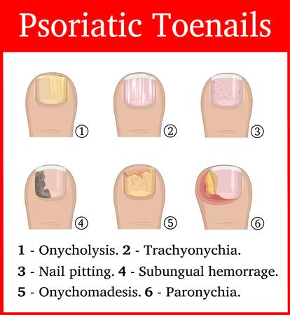 Illustration of six kinds of psoriatic tonails, such as nail pitting, subungual hemorrhage, onychomadesis, trachyonychia, onycholysis and paronychia Illustration