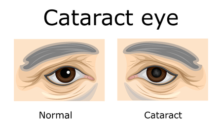 Comparison of a healthy eye and an eye with cataracts Illustration