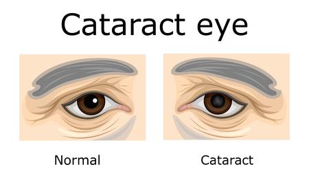 Vergleich eines gesunden Auges und eines Auges mit grauem Star Standard-Bild - 90440997