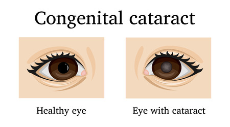 Illustration of Congenital cataract in an infant