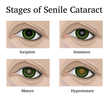 Illustration of the four stages of Senile cataracts, such as incipient, immature, mature and hypermature.