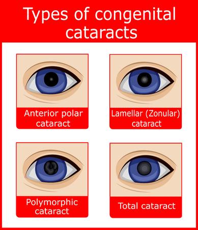 Quatre types de cataractes congénitales, telles que polaire antérieure, lamellaire, polymorphe et totale Banque d'images - 90840071