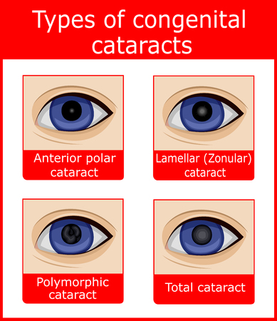 Four types of congenital cataracts, such as anterior polar, lamellar, polymorphic and total Illustration
