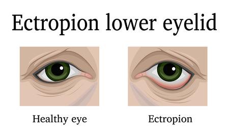 Illustration Ektropium des Unterlides. Zum Vergleich ist ein gesundes und schmerzendes Auge dargestellt Standard-Bild - 90908812