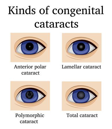 Quatre types de cataractes congénitales, telles que polaire antérieure, lamellaire, polymorphe et totale Banque d'images - 90908814