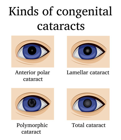 Four kinds of congenital cataracts, such as anterior polar, lamellar, polymorphic and total