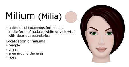 Illustration of a dermatological disease Milium. For example, the face of a young woman with the symptoms of this disease