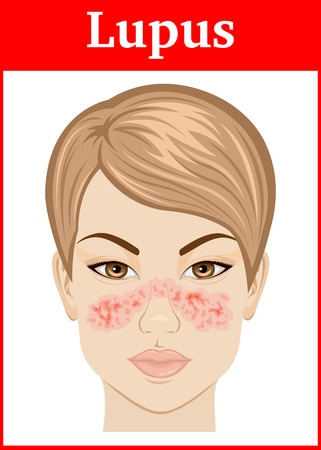 Illustration symptoms of Systemic lupus on the face of a young girl