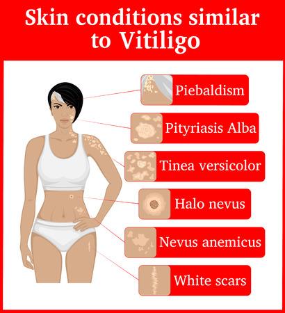 Six skin conditions having an external similarity with Vitiligo, such as Vitiligo.