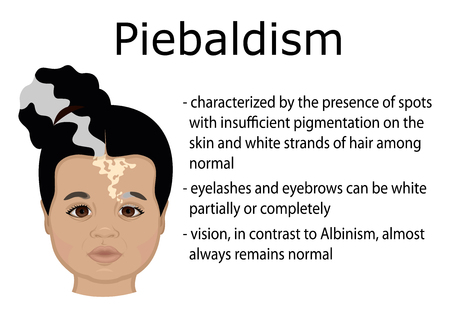 Illustration of a little girl with symptoms of Piebaldism
