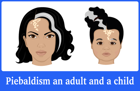 Illustration of the symptoms of piebaldism in a young woman and a little girl