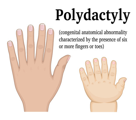 Polydactyly illustration the example of the hand of the child and adult hands
