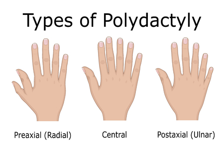 Illustration of three types of Polydactyly isolated on plain background. Illustration