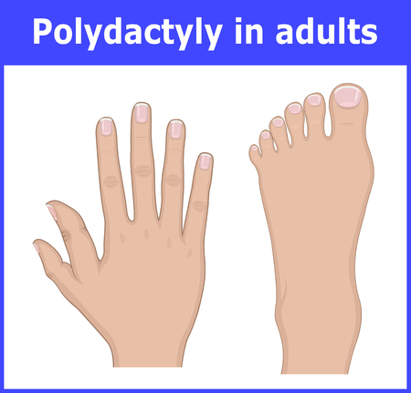 Illustration of Polydactyly of the foot and hands of an adult