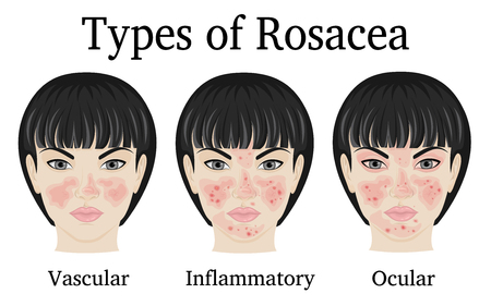 Three types of Rosacea - vascular, inflammatory and ocular for example depicted on the face of a young woman Illustration