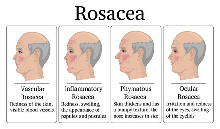 Four types of Rosacea - vascular, inflammatory, phymatous and ocular, for example depicted on the face of an elderly man