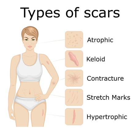 Illustration of five types of scars on the body of a young girl Ilustração