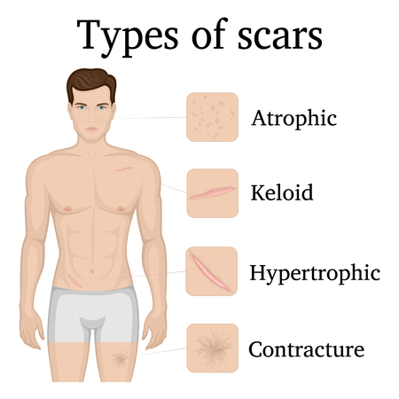 Illustration of four types of scars on the body of a man Illustration