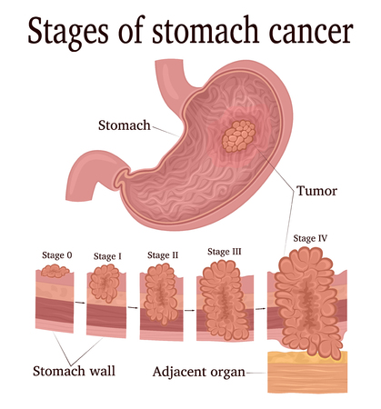 Stages of development of a malignant tumor - cancer of the stomach Illustration
