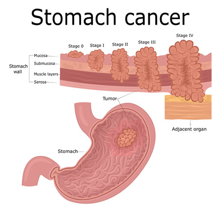 Five stages of the development of oncological disease - cancer of the stomach