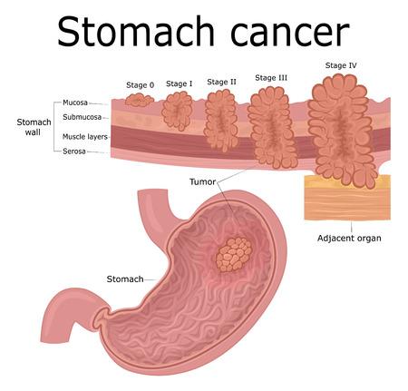 Cinq étapes du développement d'une maladie oncologique - cancer de l'estomac