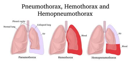 Illustration of complications after a chest injury - Pneumothorax, Hemothorax and Hemopneumothorax