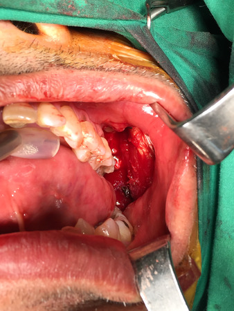oral cavity: wide excision oral cavity cancer
