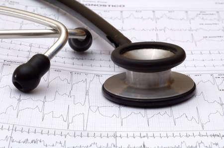 ventricle: An estethoscope over a electrocardiograph