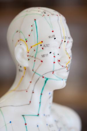 medicina tradicional china: Tiro principal de la modelo de la acupuntura masculino Foto de archivo