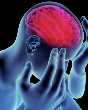 frontal view: Brain head ache, migraine, Alzheimers or dementia concept