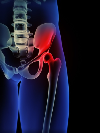 femur: Human hip pain concept