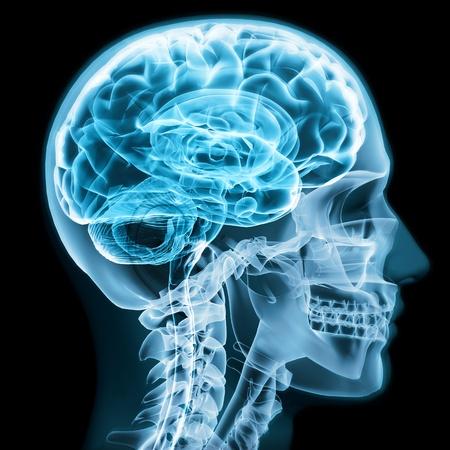 X-ray van dichtbij met de hersenen en de schedel concept van