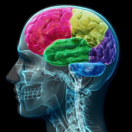 cerebro humano: Secciones coloreadas de un cerebro humano masculino, el concepto de rayos X. Parte de una serie m�dica
