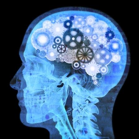 mental object: Pensador intelectual, radiograf�a humana con engranajes para el cerebro, el concepto del grunge Foto de archivo