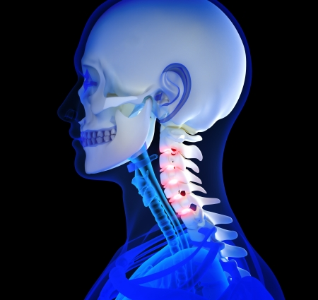 Human Neck pain focusing on area s of pain photo