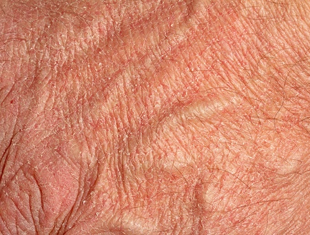 psoriasis: Dry skin on hand Stock Photo