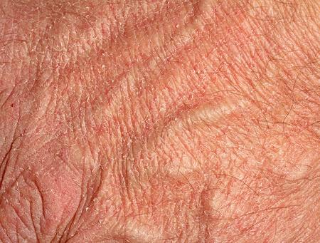 psoriasis: Dry skin on hand Stock Photo