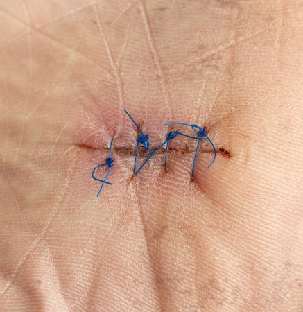 Close up image of sutures on sole of foot photo