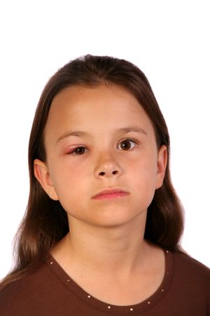 redness: Young child with a swollen eyelid and looking very sad