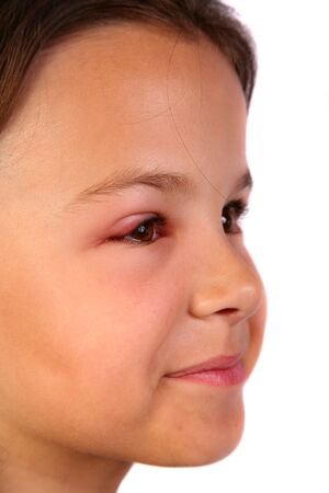 sore eye: Very cute young child with a hurt eye