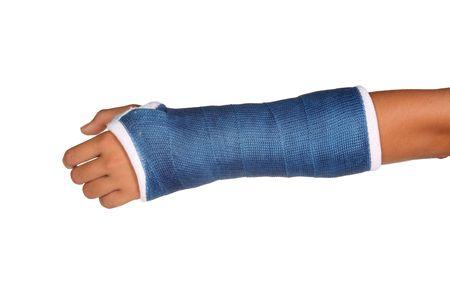broken wrist: Azul emitidos en un brazo de un ni�o aislado sobre fondo blanco