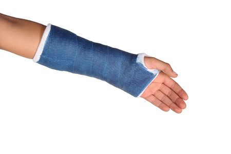broken arm: Blue cast on an arm of a child isolated on white background