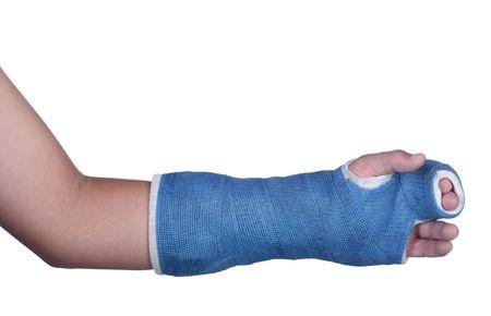 broken wrist: Aislado yeso de brazo azul sobre fondo blanco