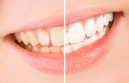 -美しい笑顔、ホワイトニング治療の前後の歯を白くします。 写真素材