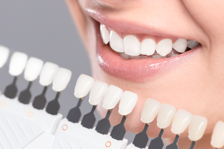 Beautiful smile and white teeth of a young woman. Matching the shades of the implants or the process of teeth whitening. Stockfoto