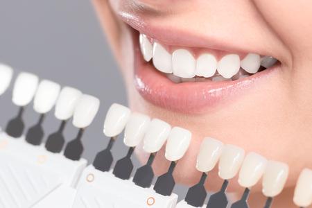 Mooie glimlach en witte tanden van een jonge vrouw. Bijpassende de tinten van de implantaten of het proces van tandenbloeden.