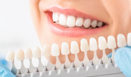 Hermosa sonrisa y dientes blancos de una mujer joven. Coincidencia de las tonalidades de los implantes o el proceso de blanqueamiento dental.
