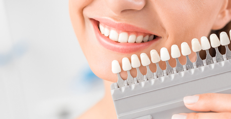 Sorriso bonito e dentes brancos de uma jovem mulher. Combinando as sombras dos implantes ou o processo de clareamento dos dentes. Foto de archivo - 89631340